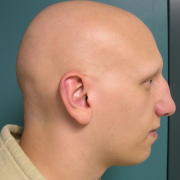 Alopecia Areata (s fotkami)  9ca18b209df