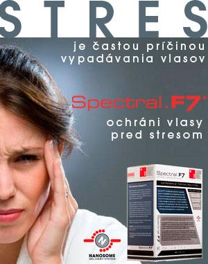 Je príčinou vypadávania vlasov stres   91c946aa08a