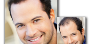 Vhodný zahusťovač vlasov zahustí vlasy prirodzene